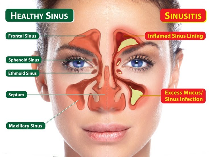 How to clear sinuses