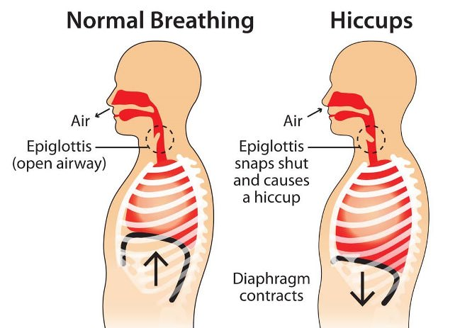 How Do You Get Rid Of Hiccups For Dogs