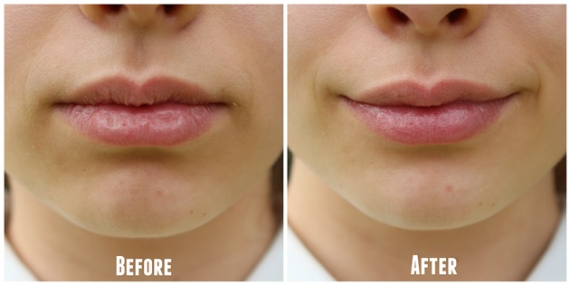 get rid of chapped lips