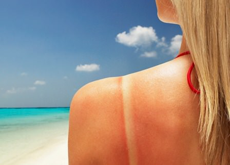 how to get rid of sunburn fast