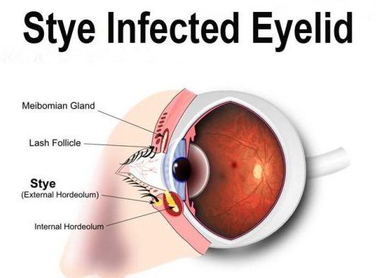 How To Cure Eye Stye Naturally