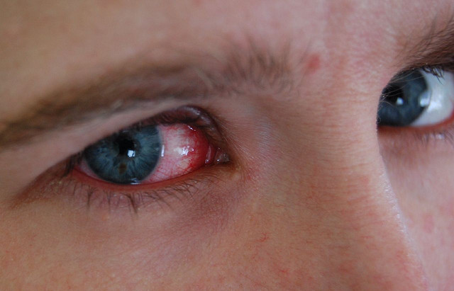 get rid of red eye