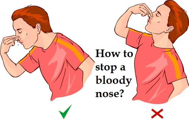 How to Stop a Bloody Nose