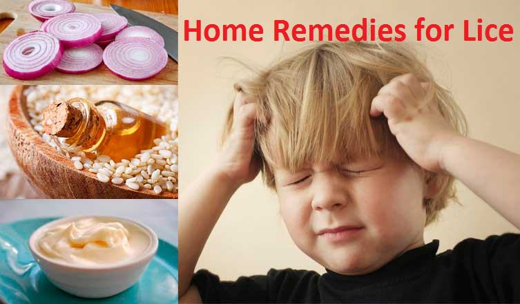 home remedies for lice