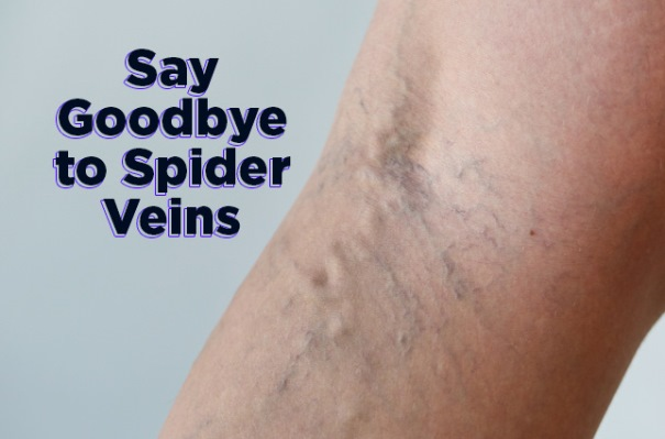 how to get rid of spider veins fast