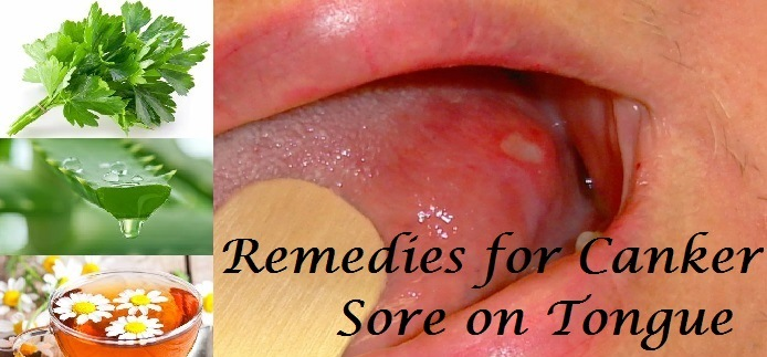Remedies for Canker Sore on Tongue