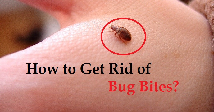 how to get rid of bug bites