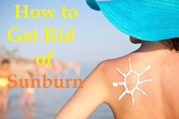 how to get rid of a sunburn