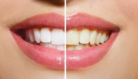 how to whiten teeth fast at home