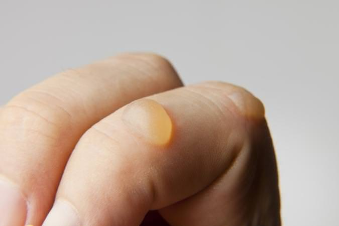 How to get rid of warts on finger