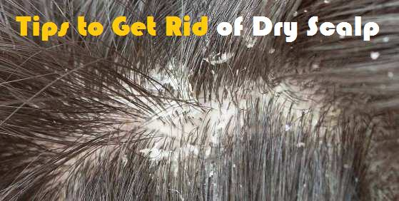 What To Use For Dry Scalp On Natural Hair