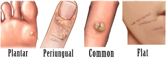 How to remove warts