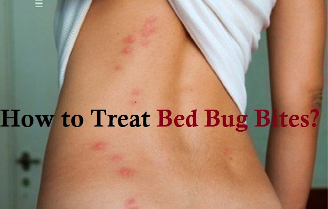 how to treat bed bug bites new