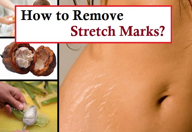 Egg White for Stretch Marks - Facts, Pros, and Cons